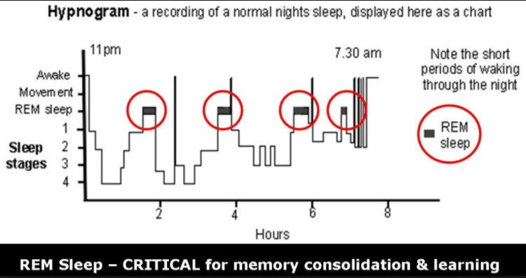 Rem Sleep, Dementia, and Memory Loss Are All Linked, Study