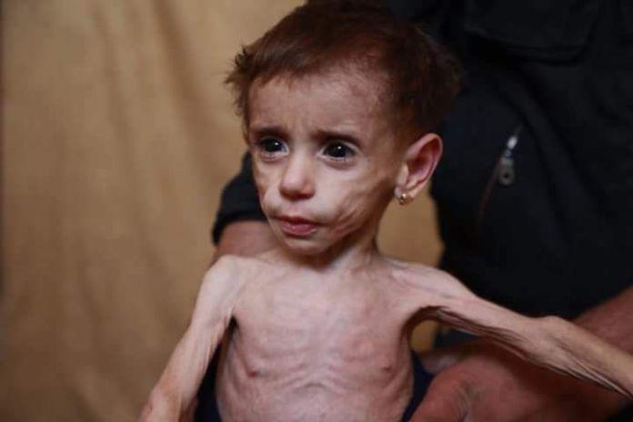 Ovo je 2-godišnja djevojčica Hala. Živi u Istočnoj Guti.  Ima svega 4.1 kg i polako umire od gladi. Pred tvojim očima! Pred očima svirepog svijeta!
