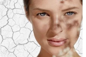 Het verschil tussen een droge of gedehydrateerde huid.
