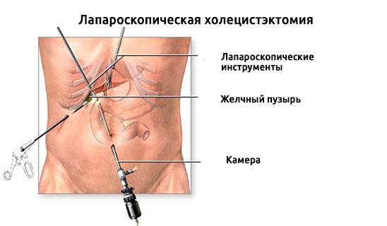 Что делать, если болит живот после холецистэктомии. Боли после операции по удалению желчного пузыря