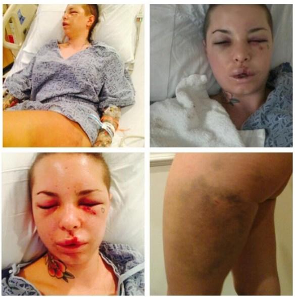 Christy Mack attack beaten War Machine