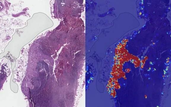 cáncer de mama1