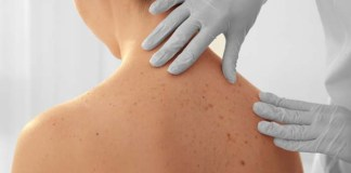 cáncer a la piel