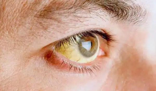 ojos-amarillentos-ictericia
