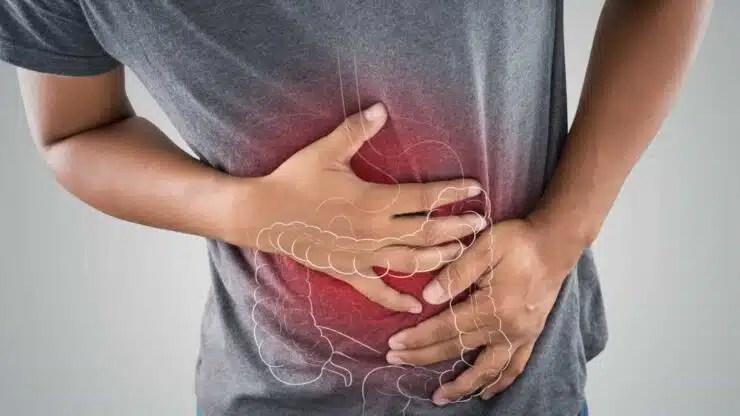 cáncer de intestino
