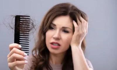 caida de cabello 2