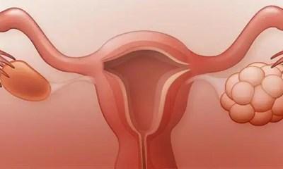 sindrome-ovario-poliquistico
