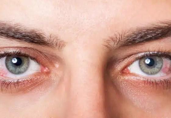 ojos secos
