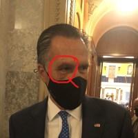 Q SCOOP - Mitt Romney souffre d'un œil au beurre noir et des points de suture.