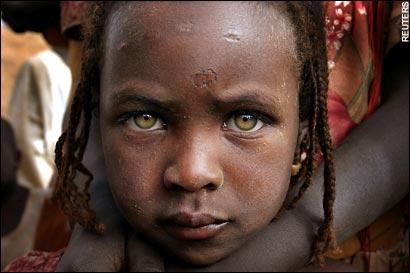 abused-child-sudan