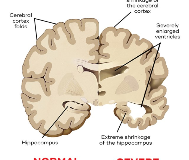 Comparison Of A Normal Brain And Degeneration From Severe Alzheimers Disease