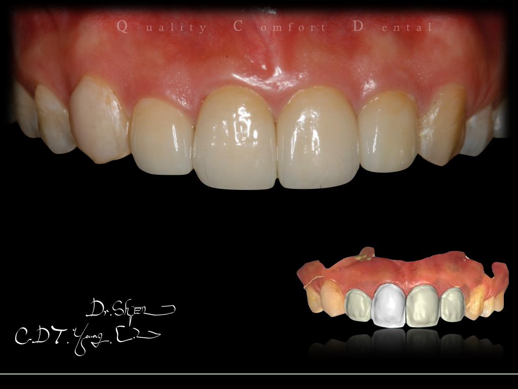 案例- 3D全瓷冠   Qc品適牙醫診所