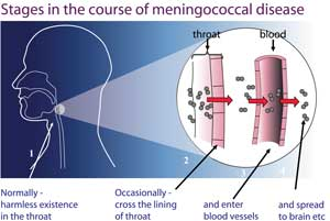 course-of-meningococcal-dis(1)