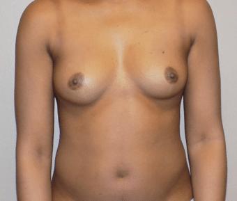 charlotte plastic surgery