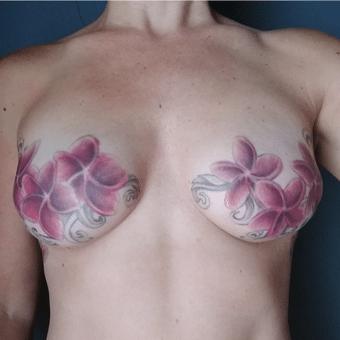 breast surgery board-certified plastic surgeon charlotte nc