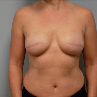 breast surgery before and after charlotte NC