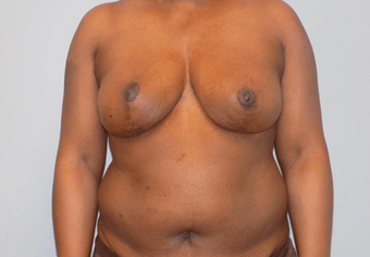 cosmetic surgery charlotte plastic surgery
