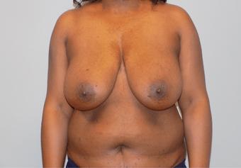 charlotte plastic surgeon ballantyne plastic surgery