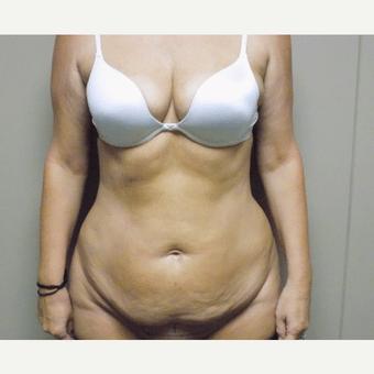 tummy tuck bodytite coolsculpt sculpsure charlotte nc