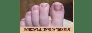 toe nail lines design