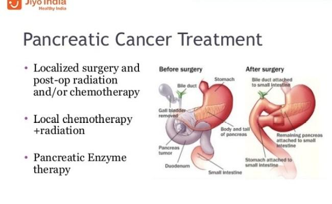 Cancer de colon ppt , - Pancreatic cancer quora