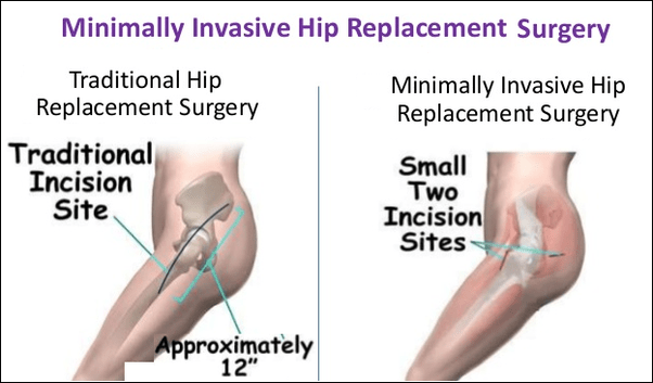 What is the cost of a minimally invasive hip replacement ...