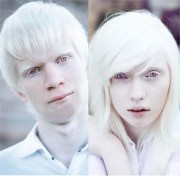 albinism affect white people