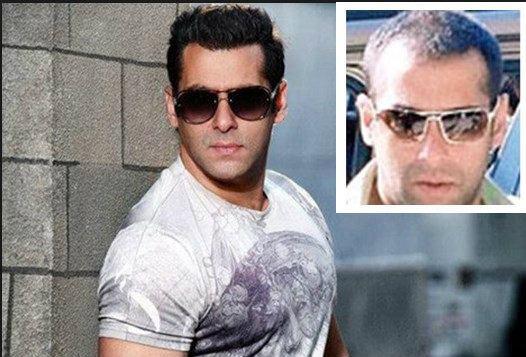 Where Did Salman Khan Get His Hair Transplant Quora