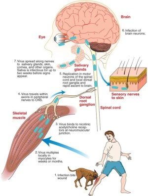 Why are viralbacterial infections in the brain not mon