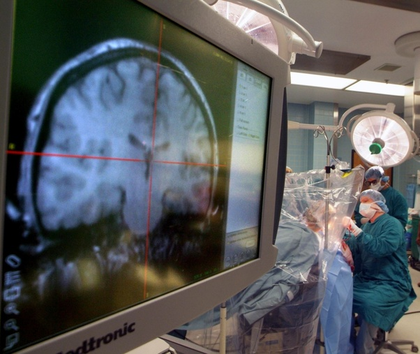 How many years does it take to study neurology? - Quora