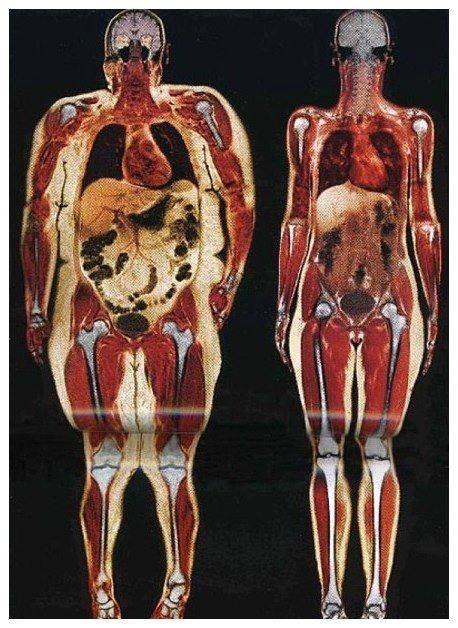 Do internal organs become bigger as you get fatter or is a ...
