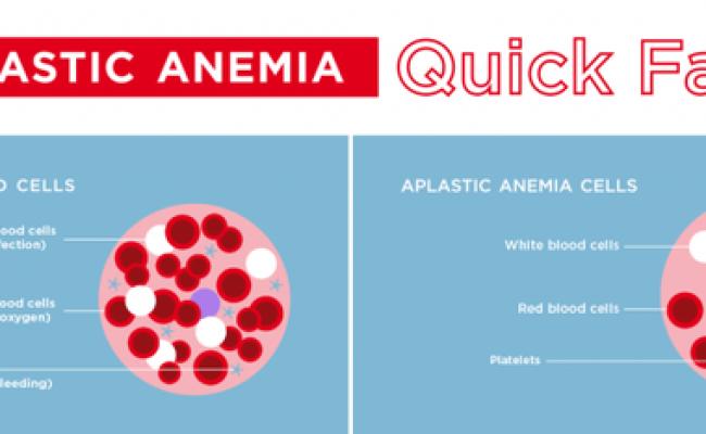 Apa Itu Anemia Aplastik Seberapa Bahaya Anemia Aplastik