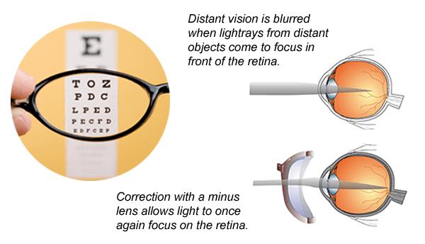 Eyeglasses Prescription Normal Axis | David Simchi-Levi