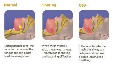 What causes sleep apnea  Quora