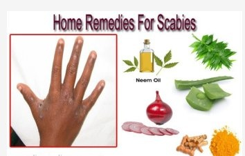 Is there anybody who has been cured of scabies? What did ...