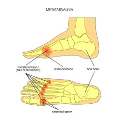 Bones In Your Foot Diagram 7 Way Trailer Connector I Have A Pain On The Sole Of My Left What Could Be Cause Sesamoiditis Is An Overuse Injury That Involves Inflammation And Sesamoids It Caused By Increased Pressure