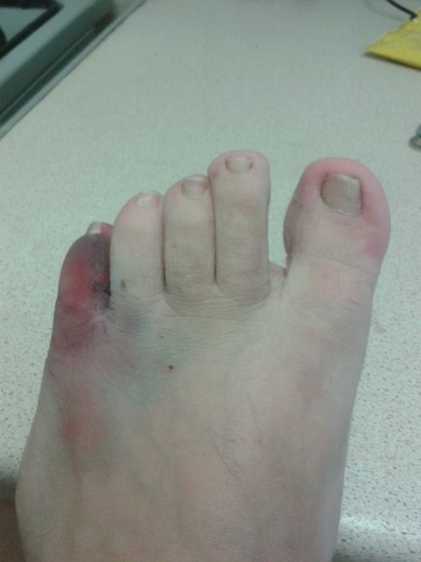 What does a broken pinky toe look like? - Quora