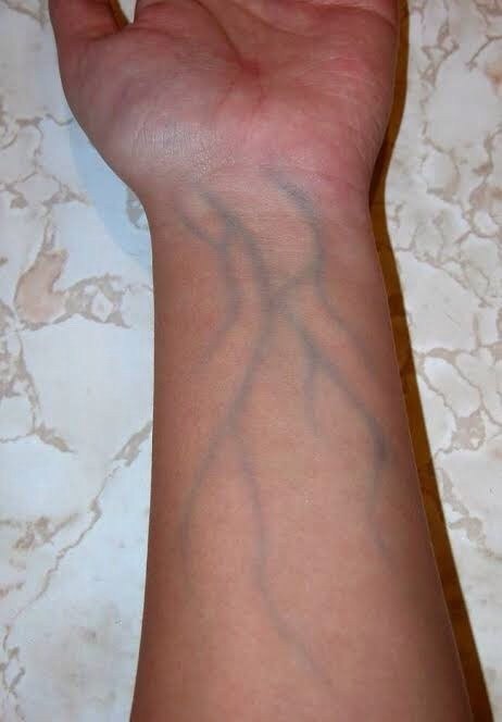 Why do veins look blue-green from the outside but when you ...