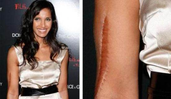 What is the story behind the scar on Padma Lakshmis arm  Quora