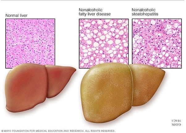 How to identify if am having a fatty liver - Quora