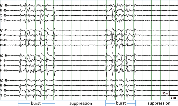 What is EEG burst suppression? How much is known about its