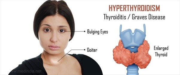 What is the difference between hypothyroidism and ...