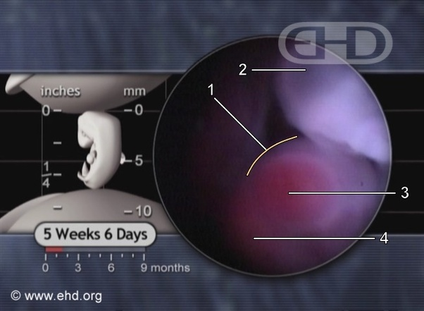 I took plan B 3 days before my ovulation (Jan 13th ...