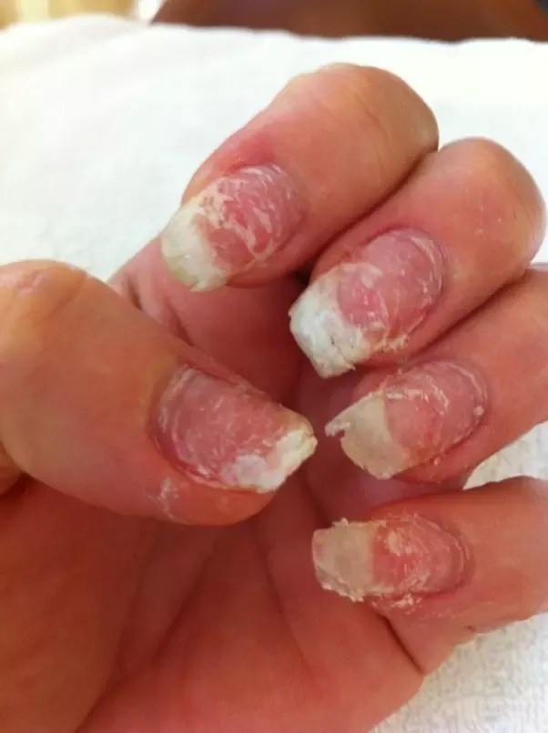 How Much Do Acrylic Nails Cost : acrylic, nails, Everything, Acrylic, Nails, Manicure, Trends