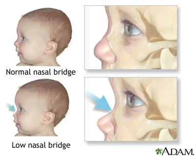 What does a high nose bridge look like? - Quora