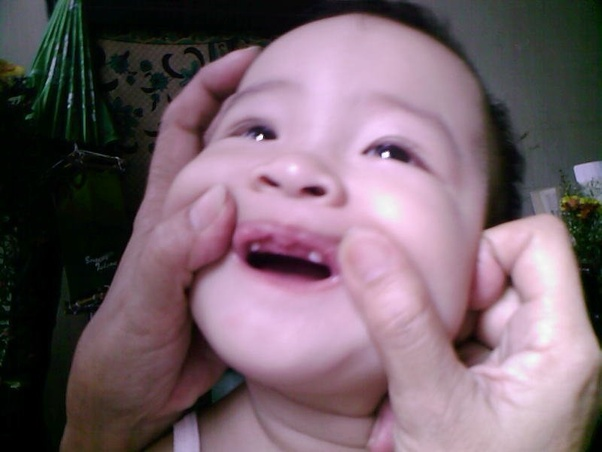 When does a baby's first tooth come in? - Quora