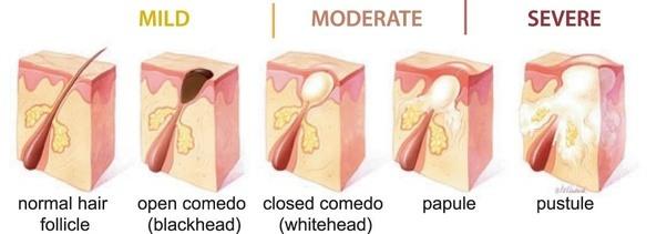 Nodule Cystic Acne Diagram