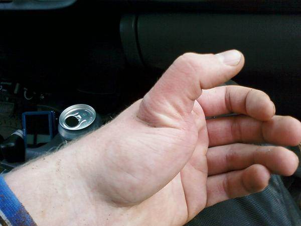 How to tell if your thumb is dislocated - Quora