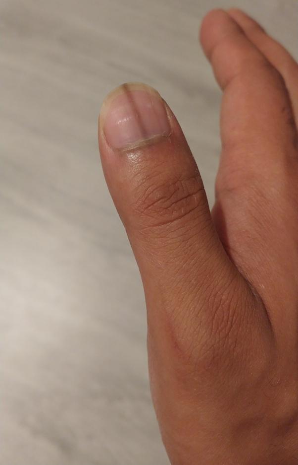 Dark Line In Nail : Brown, Appear, Fingernail?, Quora