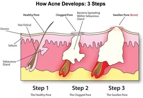 what causes acne diagram car spotlight wiring how to treat shoulder and back quora sebum along with dead skin cells bacteria can build up in the hair follicles on your clog them a clogged follicle eventually breaks down